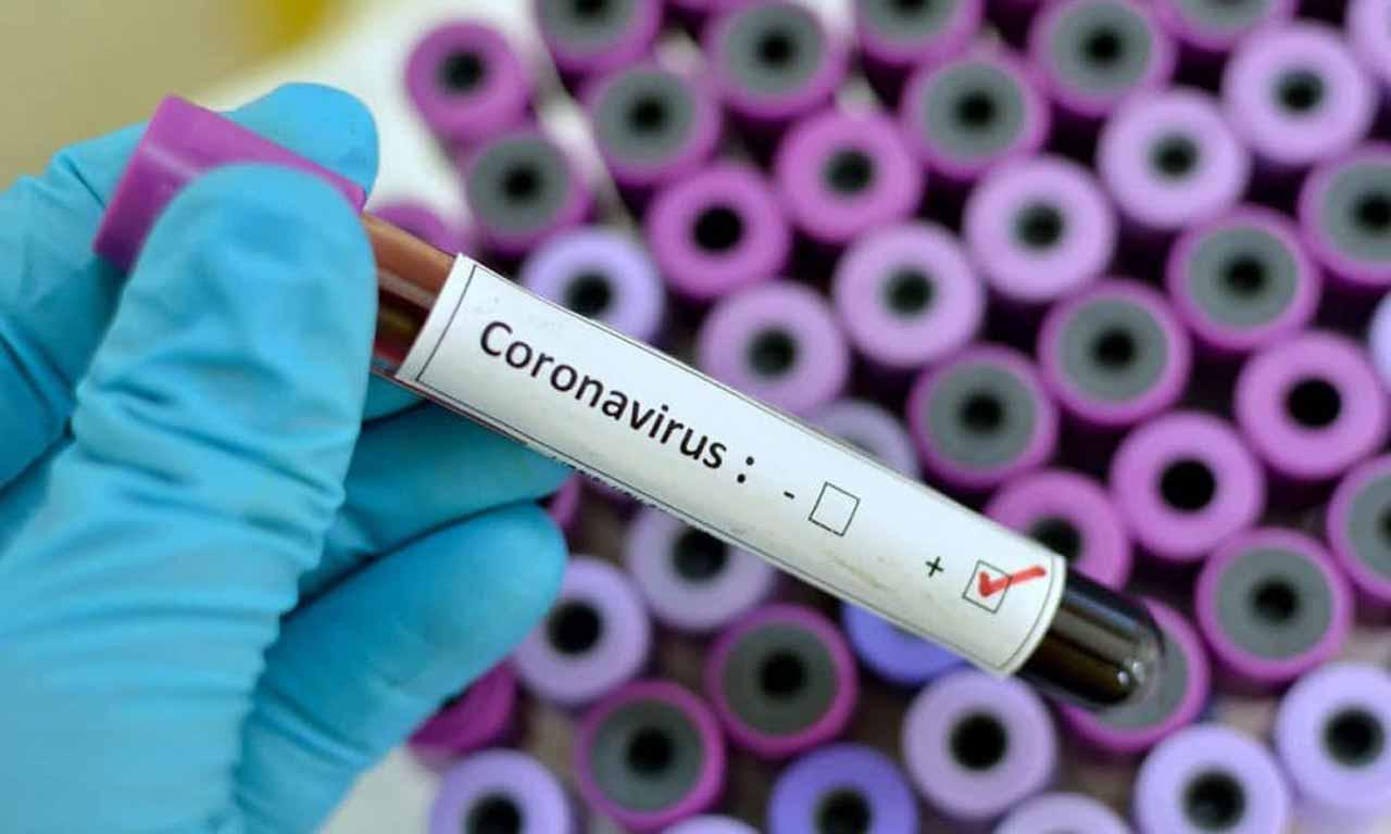 Three Coronavirus patients discharged in Kano; doctors dies from the disease