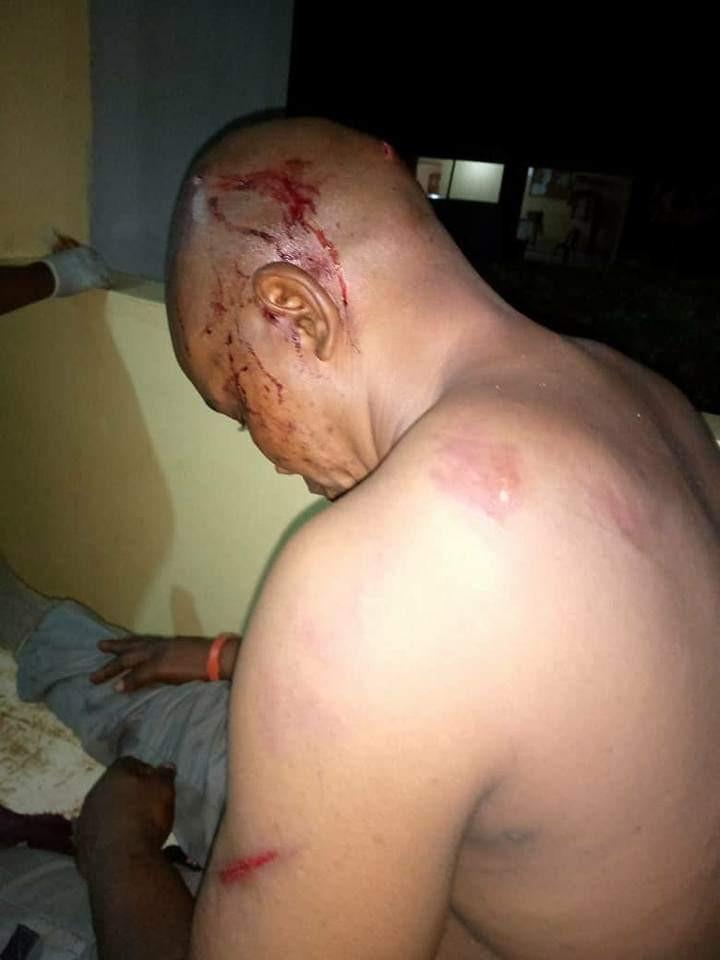 5 suspected smugglers arrested over attack on Customs officers in Ogun