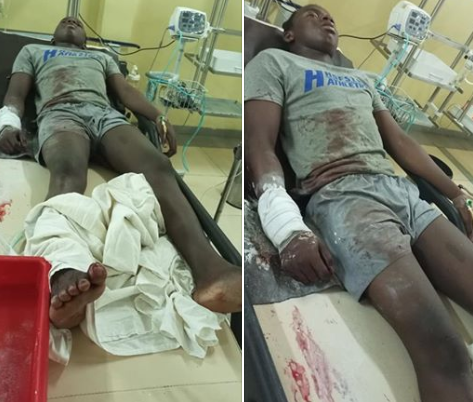 Nigerian lady cries out for justice for her cousin who suffered gunshot injury after he was allegedly attacked by SARS officials in Abuja (photos)