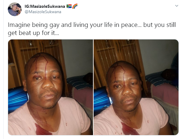 South African man beaten by homophobes for being gay