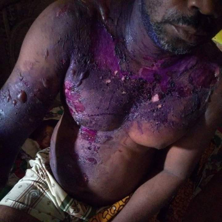 Nigerian man slapped his wife during an argument and she retaliated by pouring hot water on him while he was asleep (Photos)