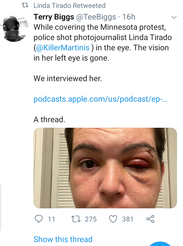 Journalist shares the last images she captured before police allegedly shot and blinded her eye while covering Minnesota protests