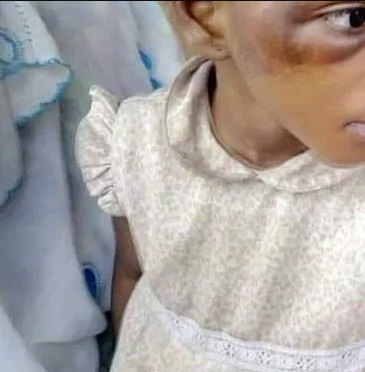 Man arrested in Oyo state for torturing his 7-yr old daughter