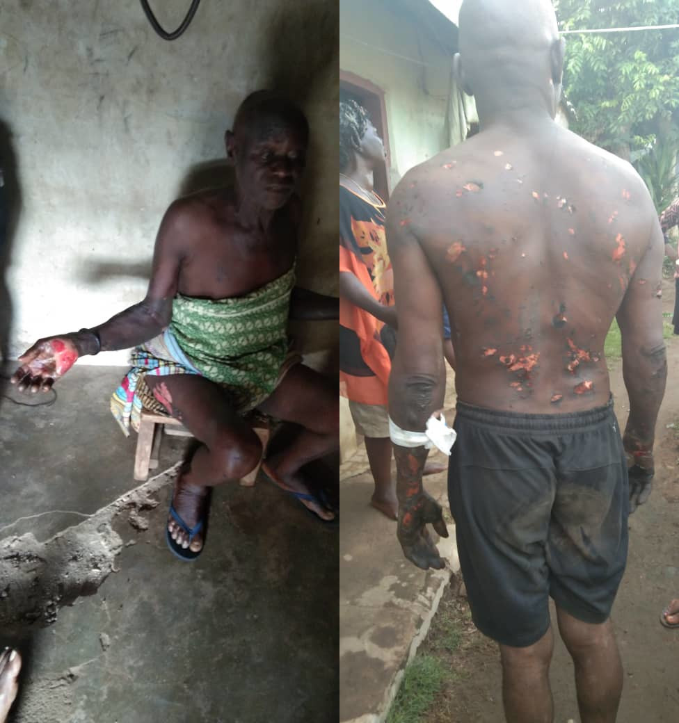 Special Adviser to the Cross River State Governor allegedly burns his subordinates after he had a dream that they betrayed him (photos)