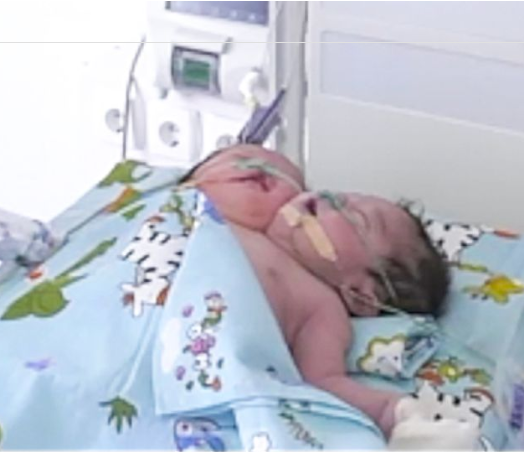 "Doctors baffled as rare ""two-headed"" baby is born in Uzbekistan"