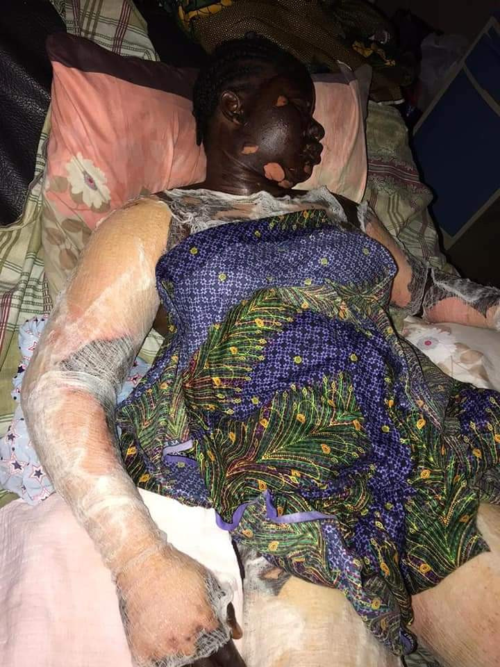 Friends mourn as woman dies after getting burnt while answering a phone call close to a gas cannister (graphic photos)