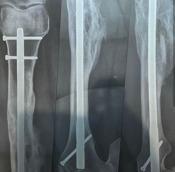 TV host, Morayo Brown shares x-ray of her leg with rods and screws attached to it as she narrates how God saved her from a ghastly accident