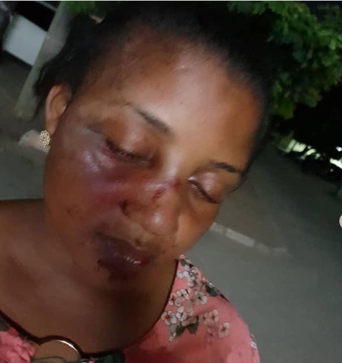 Tanzanian actress, Zena Yusuf Mohammed ends her 3-year marriage after allegedly being assaulted by her husband; shares photos of her battered face
