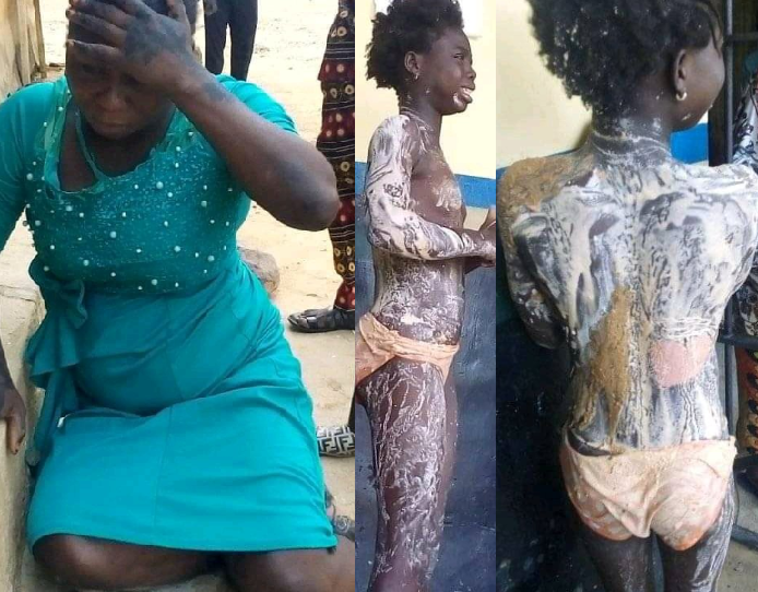 Aunt who poured hot water on her niece is finally arrested after absconding following the act
