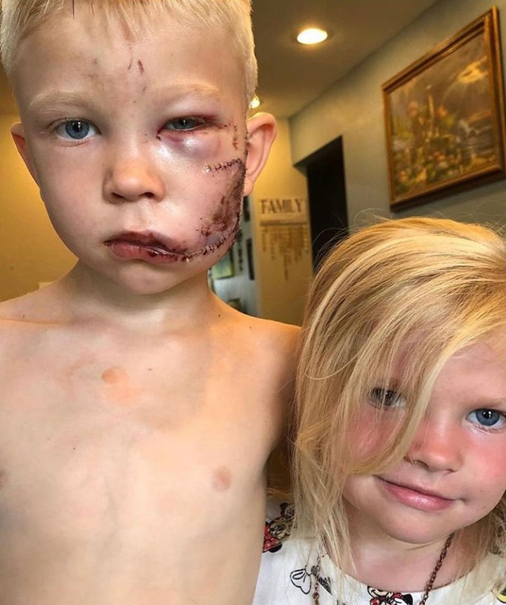 Injured boy, 6, hailed a hero after he bravely fought off a dog to save his sister