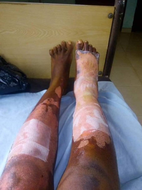 Man accused of brutalizing his wife by burning her skin after accusing her of gossiping