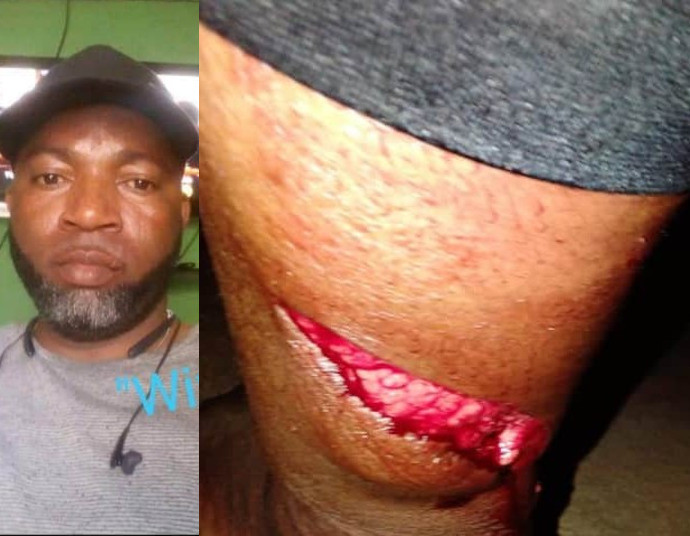 Police officer on the run after allegedly cutting his wife with a machete because she served him cold food (graphic photos)