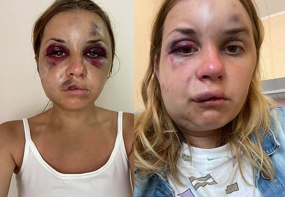 Ukrainian TV presenter suffers horrific injuries after being beaten by a stranger who tried to rape her in front of her 6-year-old son on a train?(Photos)
