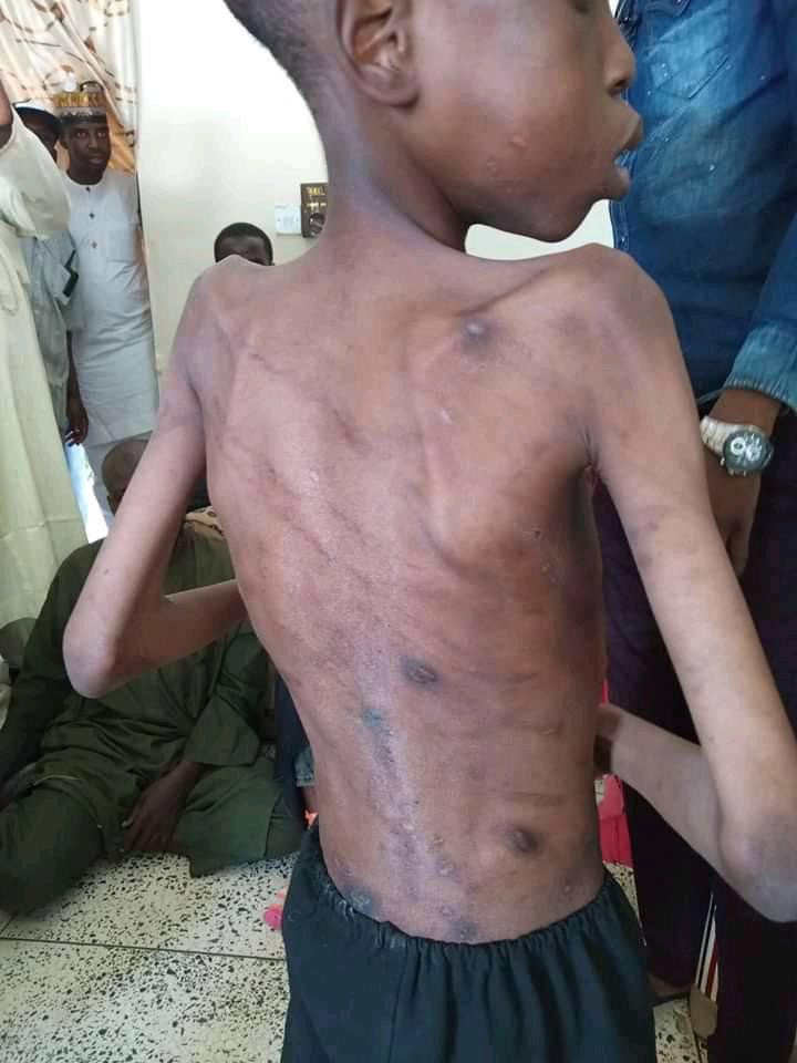 13 year-old boy allegedly abused by his father and stepmothers rescued in Borno state (photos/videos)