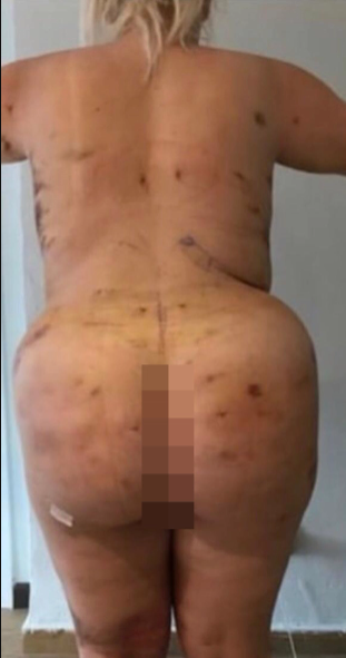 Woman, 23, ends up with a ?cone? butt after botched butt lift surgery in Turkey