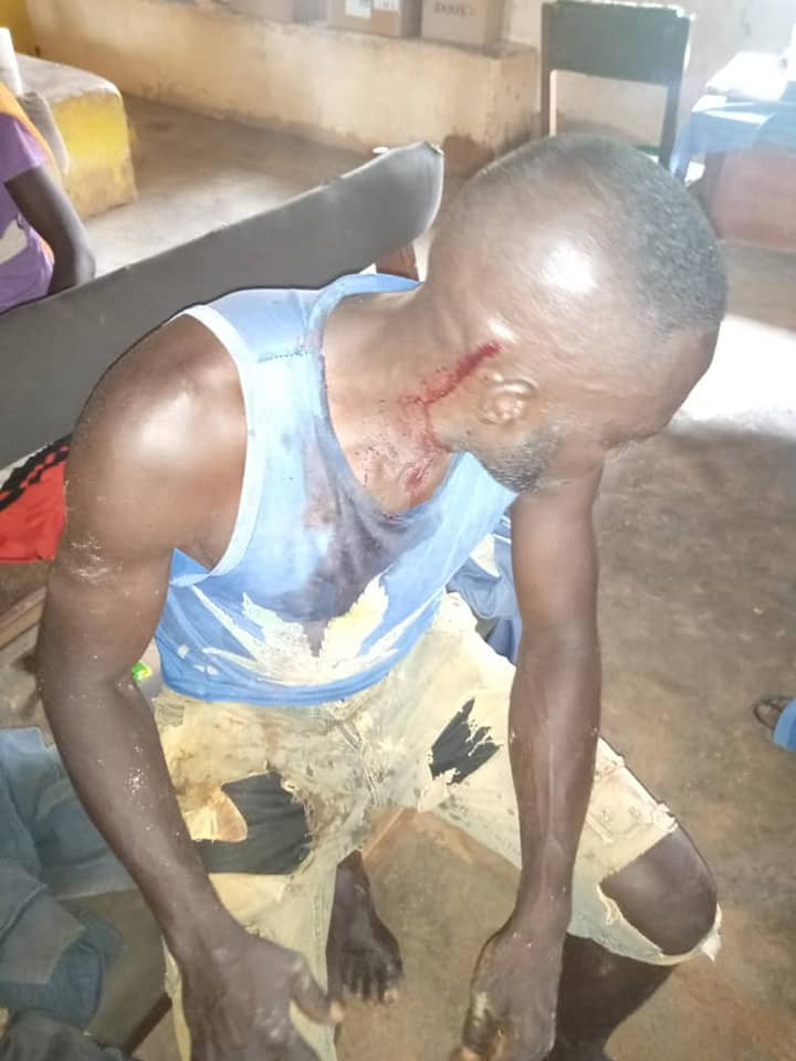 Nine injured as suspected Fulani herdsmen attack local miners in Plateau State