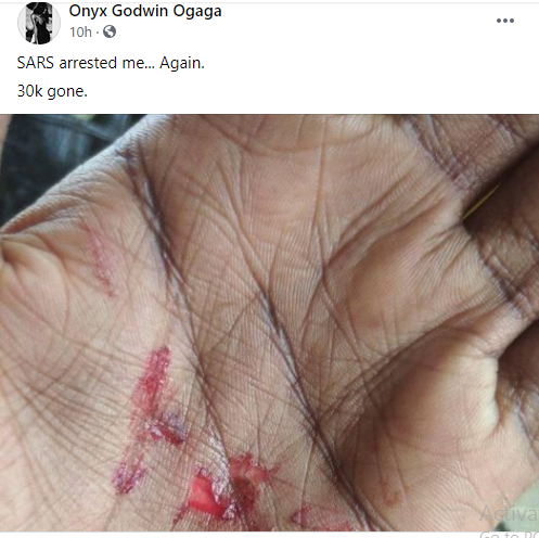Crossdresser Onyx Godwin allegedly assaulted by SARS officers