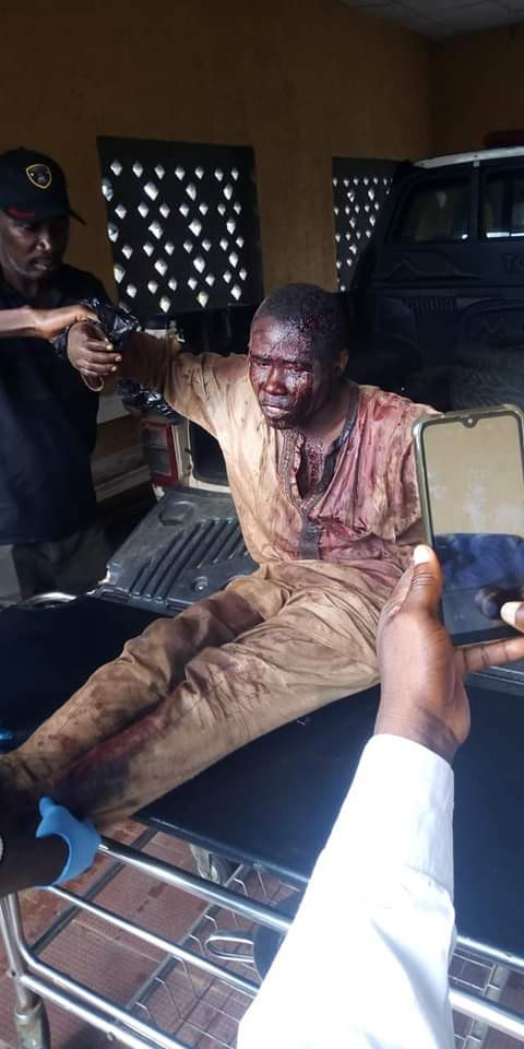 Mentally challenged man left bloodied after being attacked by unknown persons in Abuja