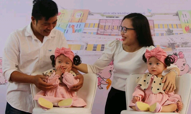 Conjoined twins discharged from hospital after successful separation