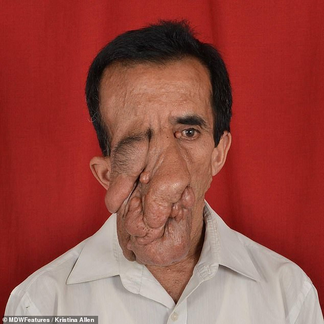 Nepalese man with tumors covering half of his face finally has it removed after cruel strangers branded him a