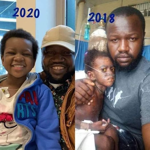 Amazing transformation of 5-year-old Nigerian girl who beat cancer of the blood