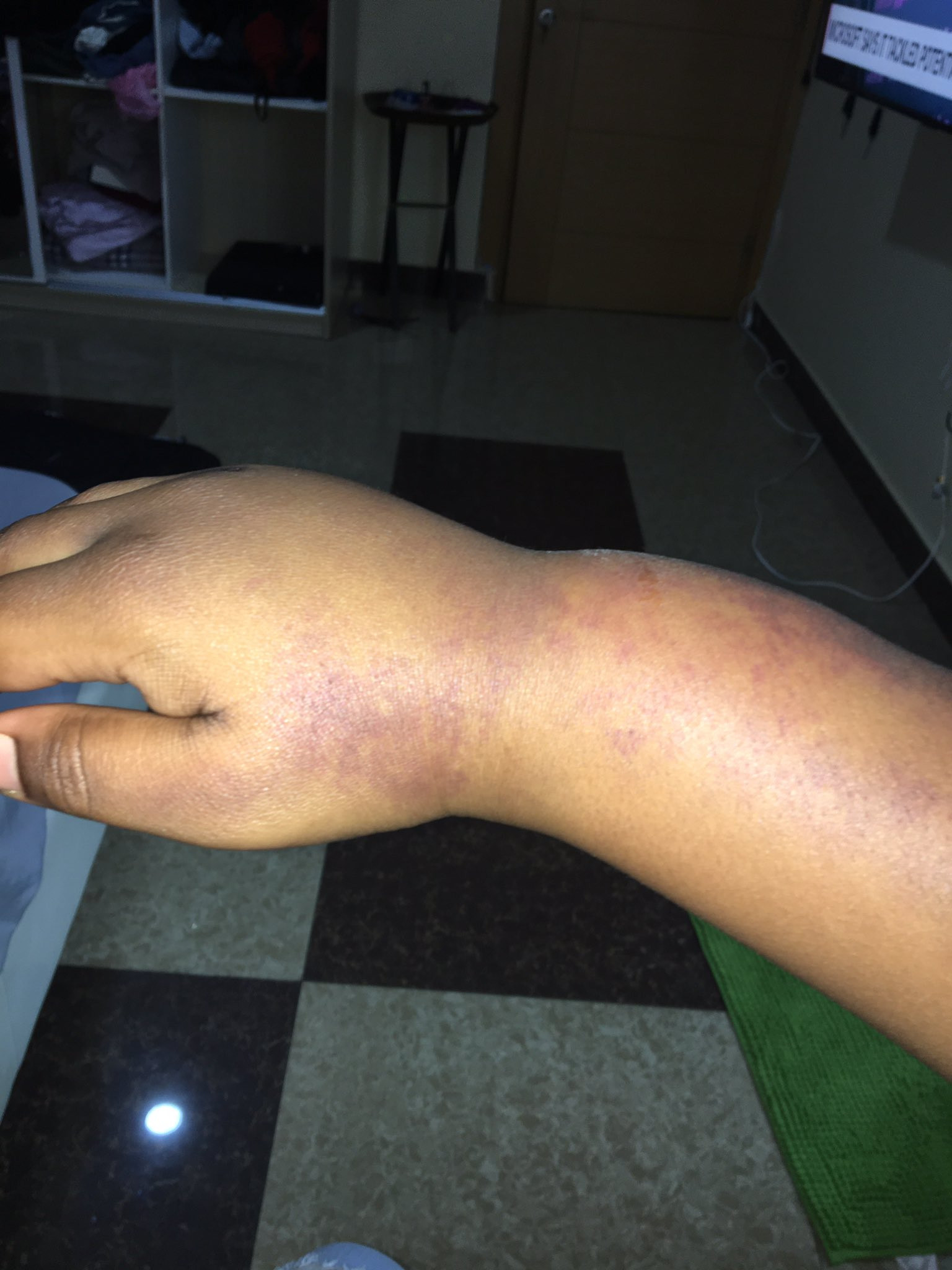 #EndSARS protester accuses police of brutalizing her during the peaceful protest in Abuja (photos)