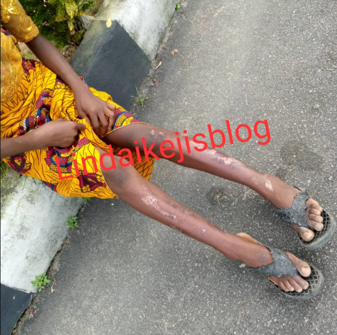 Orphan allegedly abused by her aunt with hot knife narrates ordeal (photos/video)
