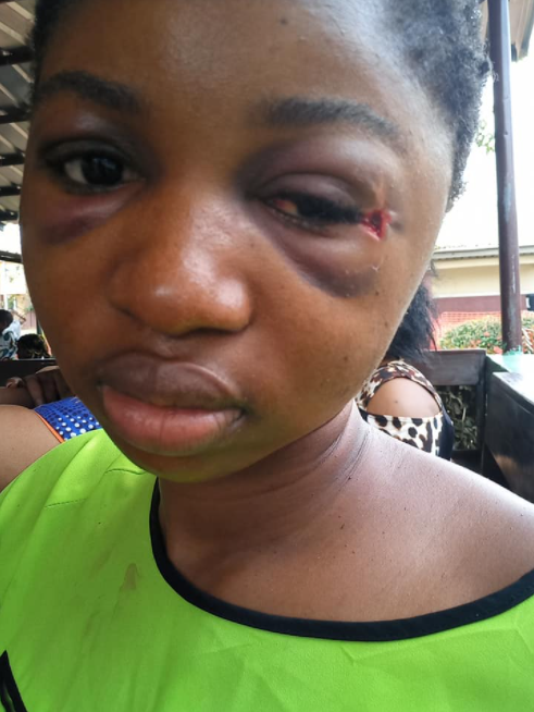 Lady survives 5 days with bullet in her head