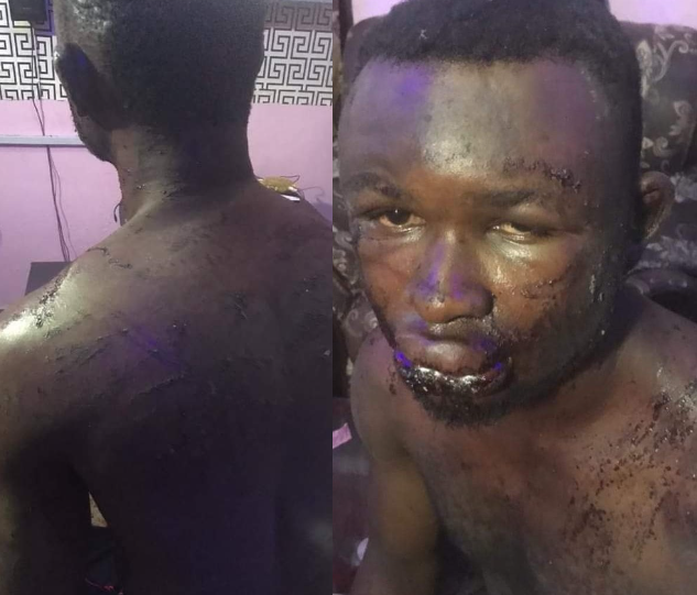 Man allegedly brutalized and almost shot by soldiers who mistook him for someone else in Rivers state