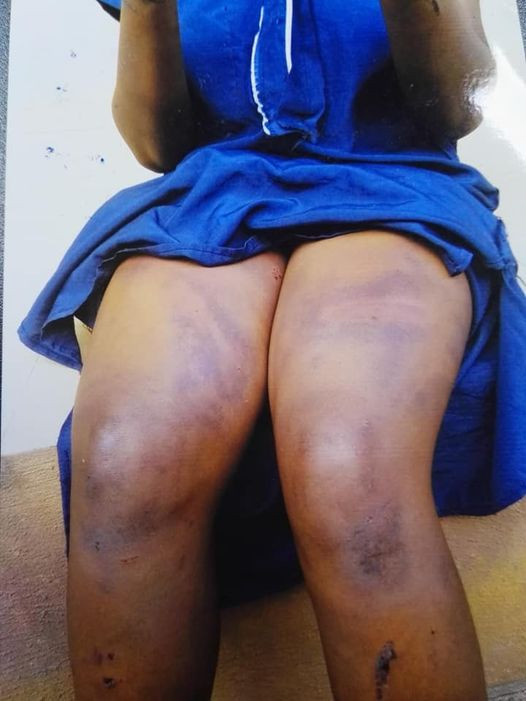 23-year-old woman allegedly beaten and stripped by her employer and his boys over theft allegation in Edo
