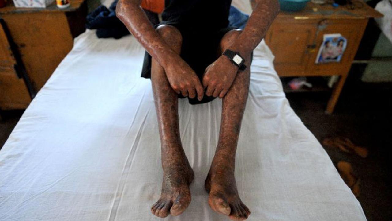 Kogi records 20 new cases of leprosy lindaikejisblog