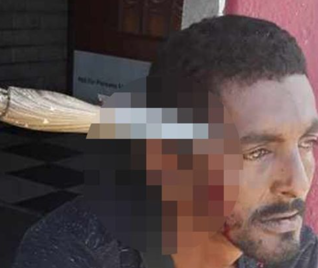 Man who had knife stuck in head resumes to work 3 days after the incident