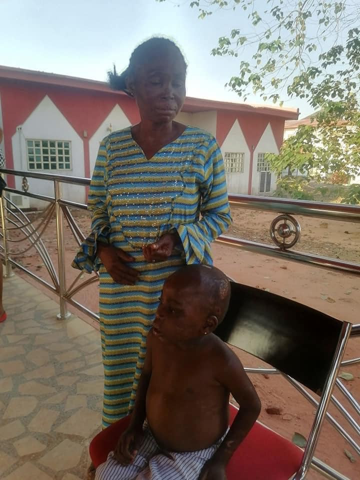 Anambra State Govt rescues 6-year-old child tortured and starved by her abusive foster mother