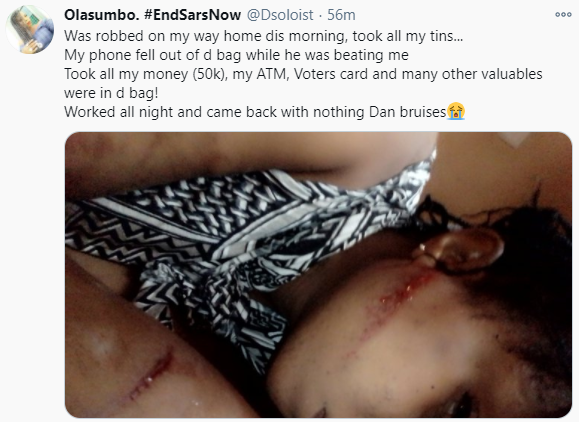 """Worked all night and came back with nothing"" Lady says as she shares photo of her bruised body after she was attacked by robbers on her way home in Oyo"