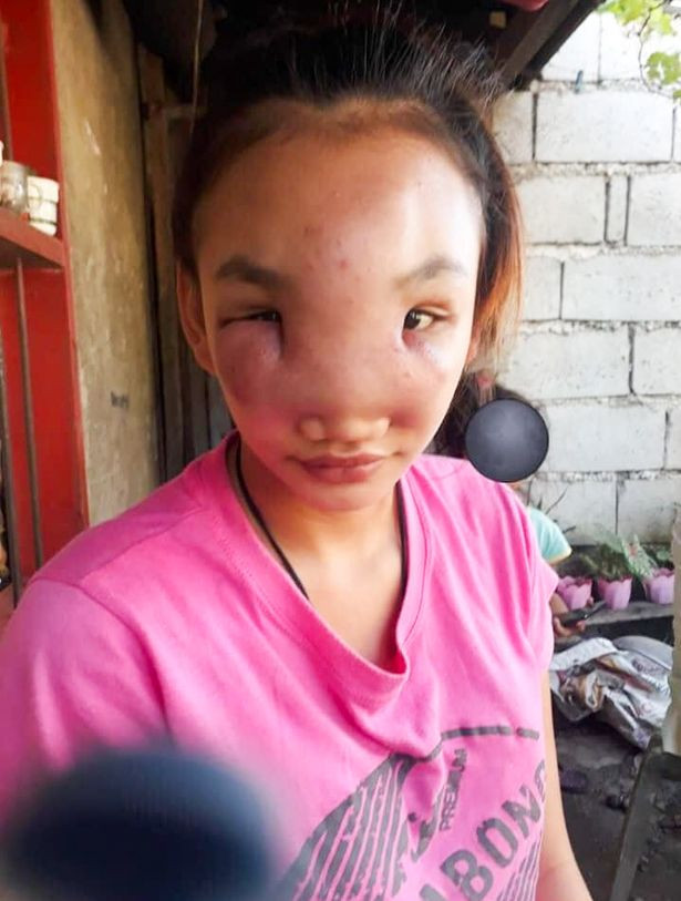 Girl, 17, turning blind after squeezing a spot on her nose