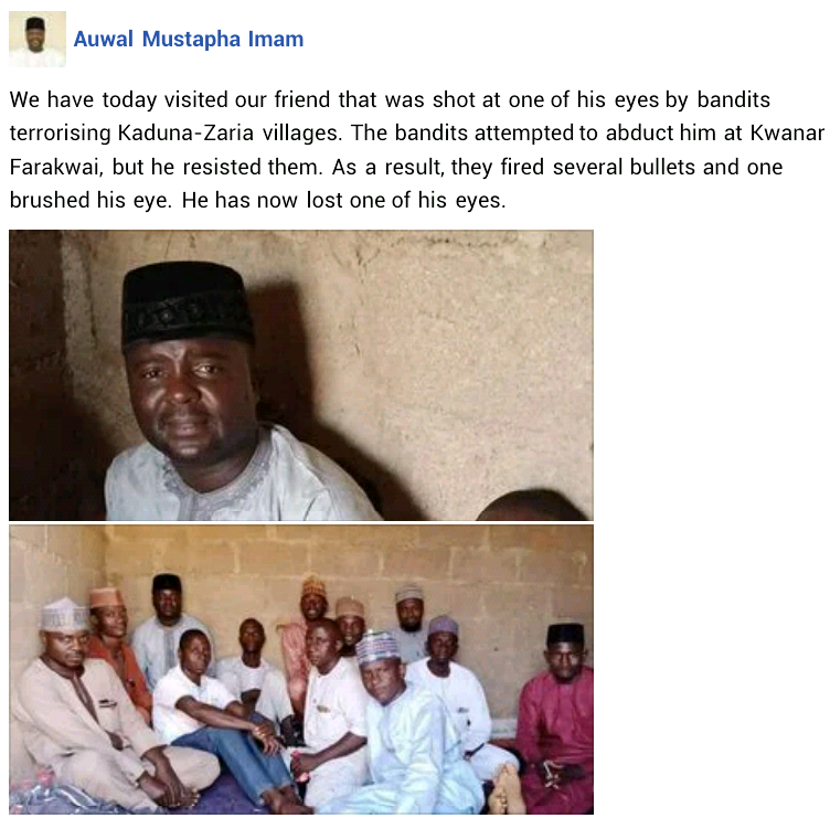 Man loses his left eye after armed bandits shot him during attempted kidnapping in Kaduna