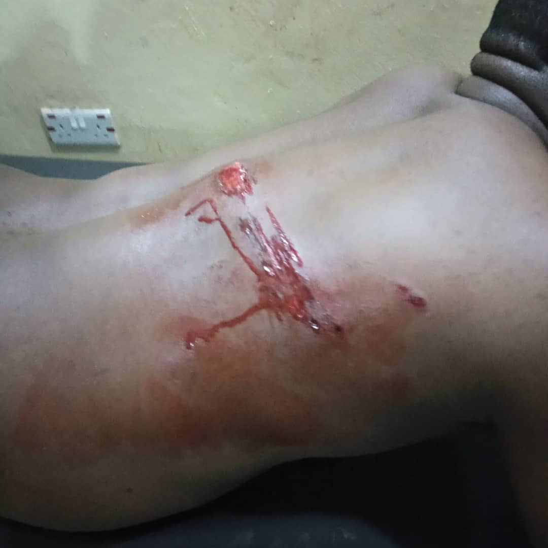 """""""They emerged from the bush and ordered me to lie down"""" - Medical doctor narrates how he was attacked by herdsmen in Cross River state"""