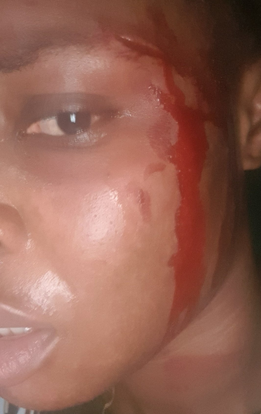 Woman narrates how she was macheted by her bike rider and fellow passenger after she refused to part with her purse and phone