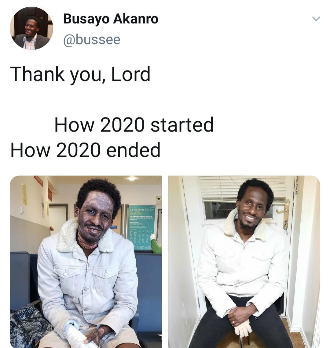 Burn survivor shares photos showing how he started 2020 and how he ended it