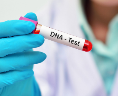 More Nigerians are coming forward for DNA tests - Nigerian Doctors say