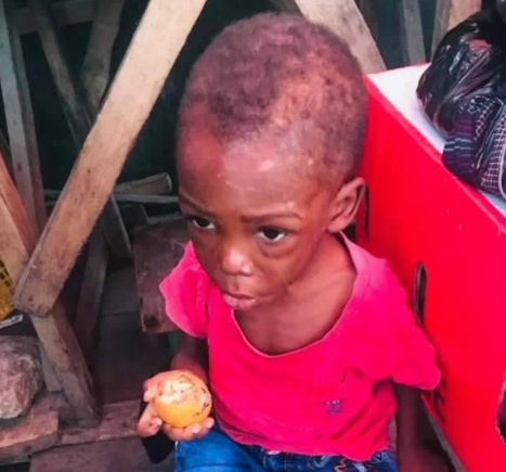 2-year-old boy allegedly maltreated and starved by his father and stepmother in Warri rescued (photos)