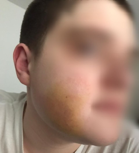 16 year old Autistic boy beaten up and robbed at knifepoint