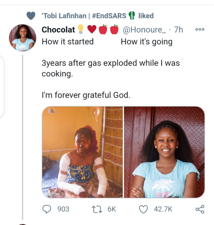Lady shows off her before and after look three years after surviving gas explosion while baking (photos)