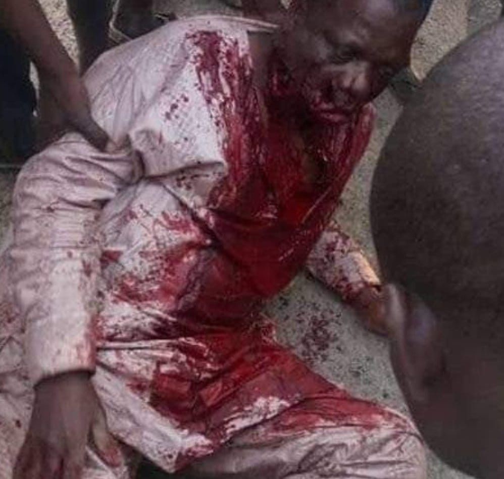 Gunmen shoot Bauchi Auditor-General, abduct his son (graphic photo)
