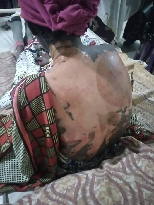 Woman pours hot water on her co-wife and 4-year-old stepdaughter in Kano