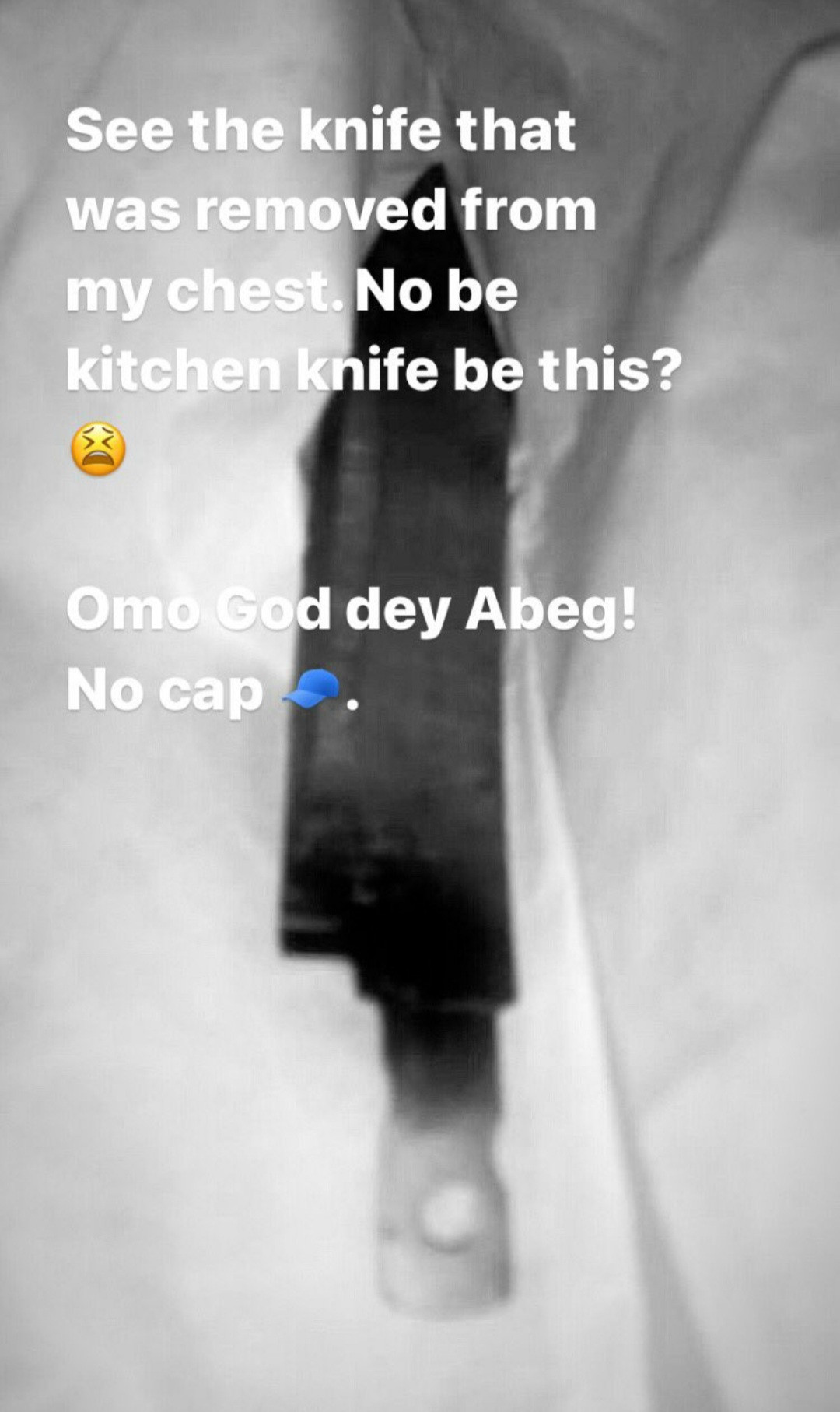 Man narrates how he discovered a knife was forgotten in his body after being stabbed