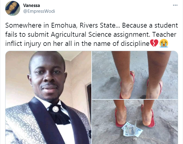 Teacher allegedly brutalizes student for failing to submit assignment in Rivers state