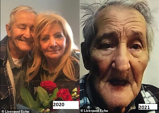 Before and after photos show the effect one year of loneliness had on elderly people following months of lockdown