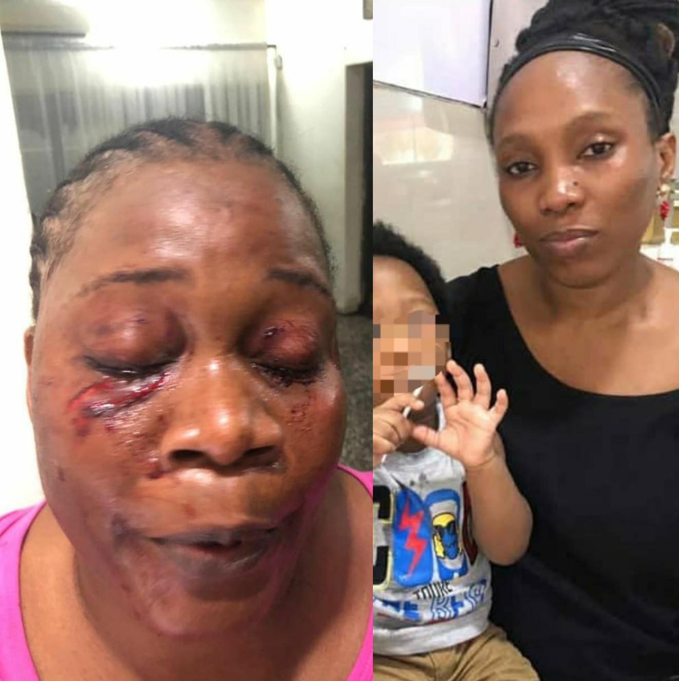 Woman allegedly disfigures her neighbour