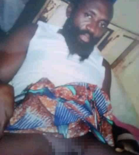 Benue man cuts off his penis to be able to control his libido